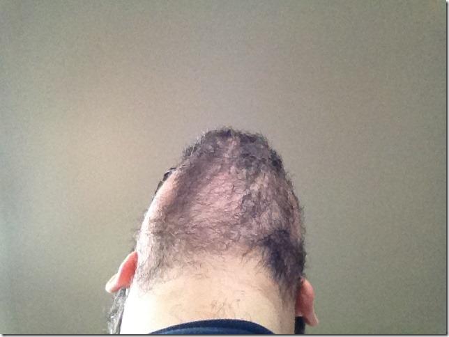 Beard from below